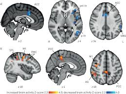 treating breathlessness via the brain changes in brain activity