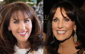 robin mcgraws hairstyle robin mcgraw plastic surgery dr phil s before and after