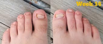kerasal toenail fungus nail toenail designs art