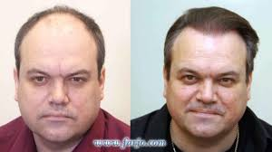 coronation street hair transplants cbb s barry from eastenders aka shaun williamson undergoes hair