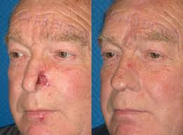cancer of the ear cartilage results gallery of nose reconstruction reconstruction of the nose