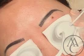 how to remove eyebrow tattoo best eyebrow for you 2017