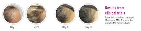 viviscal before and after hair length afro why viviscal read about how viviscal works and our success stories