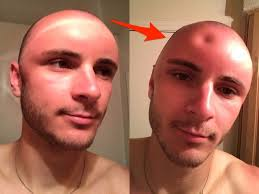 Shaved Head Meme - photos of a man s sunburned head are going viral insider