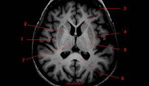 Axial Mri Brain Anatomy Thalamus