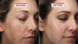 how to get rid of melasma according to ginger zee u0027s dermatologist