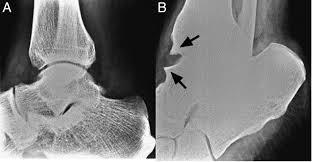 Talar Coalition Anterior Ankle Arthroscopy State Of The Art Jisakos