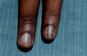 peculiar pattern of nail pigmentation following cyclophosphamide
