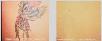 tattoo removal london tattoo removal the angel laser clinic london