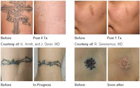 laser tattoo removal for unwanted tattoos lasers pinterest