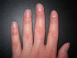ridges in fingernails 8 health warnings your fingernails may be