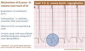 strain pattern ecg meaning ecg in lv volume overload dr s venkatesan md