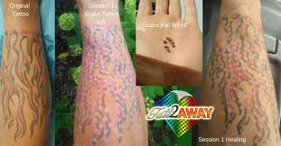 swampland tattoo removal 45 photos 6 reviews skin care