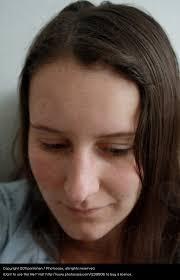 Frisuren D Ne Haare Gro゚e Nase by Große Nase Mensch Ein Lizenzfreies Stock Foto Photocase