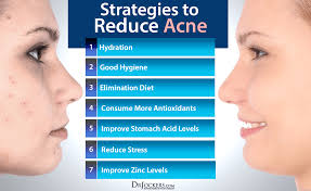 Face Mapping Acne 10 Things Acne Means About Your Health Drjockers Com