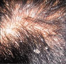 Candida And Hair Loss Superficial Fungal Infections Online Only Article Pediatrics