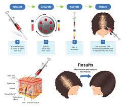 hair loss treatment by dr ipshita johri lybrate