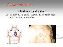 pose d une chambre implantable la douleur chez la personne atteinte de pathologie cancereuse darde