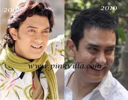 aamir khan hair transplant aamir khan botox before and after pinkvilla