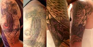gallery tattoo removal sydney laser tattoo removal
