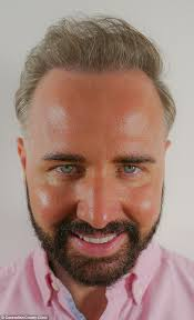 antony cottons hair transplant gogglebox s chris steed spends 8 000 on hair transplant daily