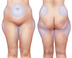 come dimagrire il sedere femminile dimagrire modificando il metabolismo cuscinetti interno coscia