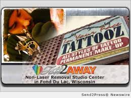 in your face tattooz is first in wisconsin with novel non laser