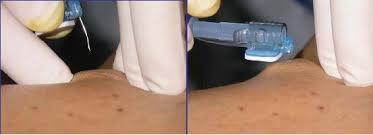 chambre implantable complications bonnes pratiques d utilisation d une chambre à cathéter implantable