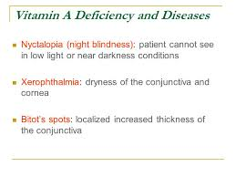 Night Blindness Caused By Vitamin A Deficiency Vitamin A U0026 Visual Cycle Ppt Online Download