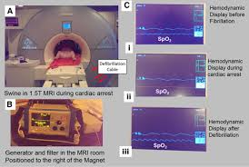 a magnetic resonance imaging u2013conditional external cardiac