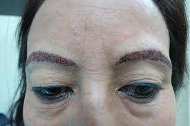 eyebrow hair transplant in delhi eyebrow restoration cost and