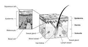 what is melanoma skin cancer