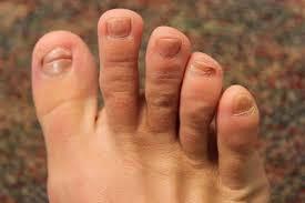 exploring patient concerns what causes toenail ridges