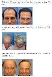 Alcohol And Hair Loss Reverse Hair Loss Program Truth In Advertising