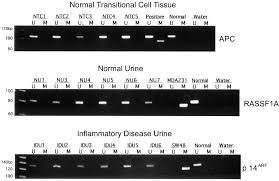 detection of bladder cancer in urine by a tumor suppressor gene