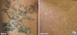 before and after results rochester tattoo removal
