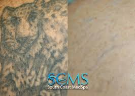 south coast medspa laser tattoo removal tips to help you find the