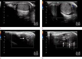 ultrasonography of pediatric urogenital emergencies review of