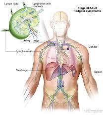 pembrolizumab approved for hodgkin lymphoma national cancer