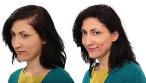 hair bonding low cost non surgical hair replacement or high cost hair