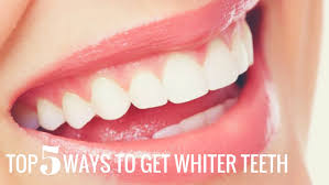 top 5 ways to get whiter teeth ottawa downtown dentist