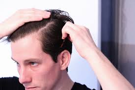 criwn hair cut which side should men comb part their hair man of many