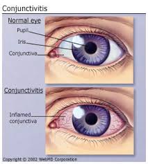 What Causes Eye Blindness Understanding The Basics Of Pink Eye