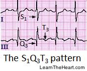 strain pattern ecg meaning pulmonary embolism ecg review criteria and exles