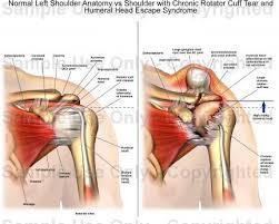 Human Shoulder Diagram Normal Left Shoulder Anatomy Vs Shoulder With Chronic Rotator Cuff