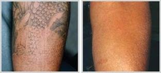 laser tattoo removal nu skin laser solutions