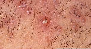 yeast infection bumps sores rash red itchy pimples lump