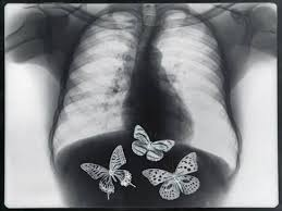 x of butterflies in the stomach photographic print by thom