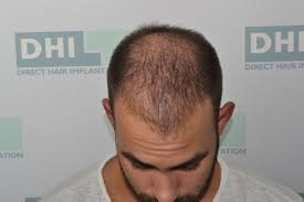 70 days after the dhi hair restoration dhi global medical group