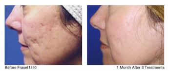 light therapy for acne scars the acne clinic at westside laser and light westside laser light